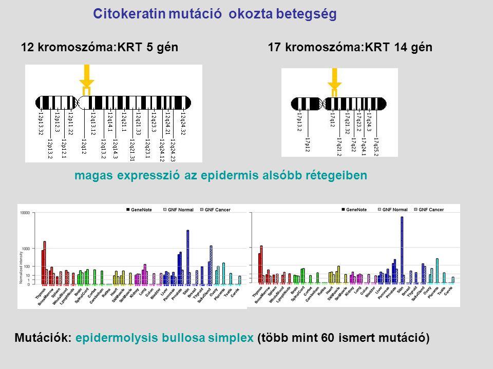 Citokeratin mutáció okozta betegség