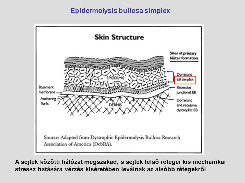 Epidermolysis bullosa simplex