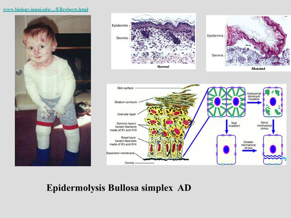 Epidermolysis Bullosa simplex AD