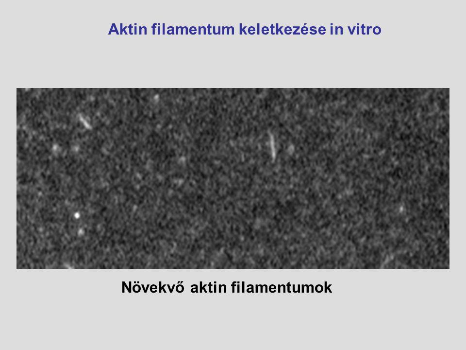 Növekvő aktin filamentumok