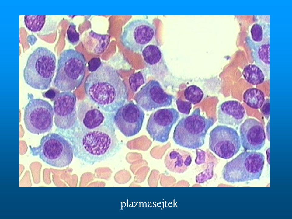 plazmasejtek