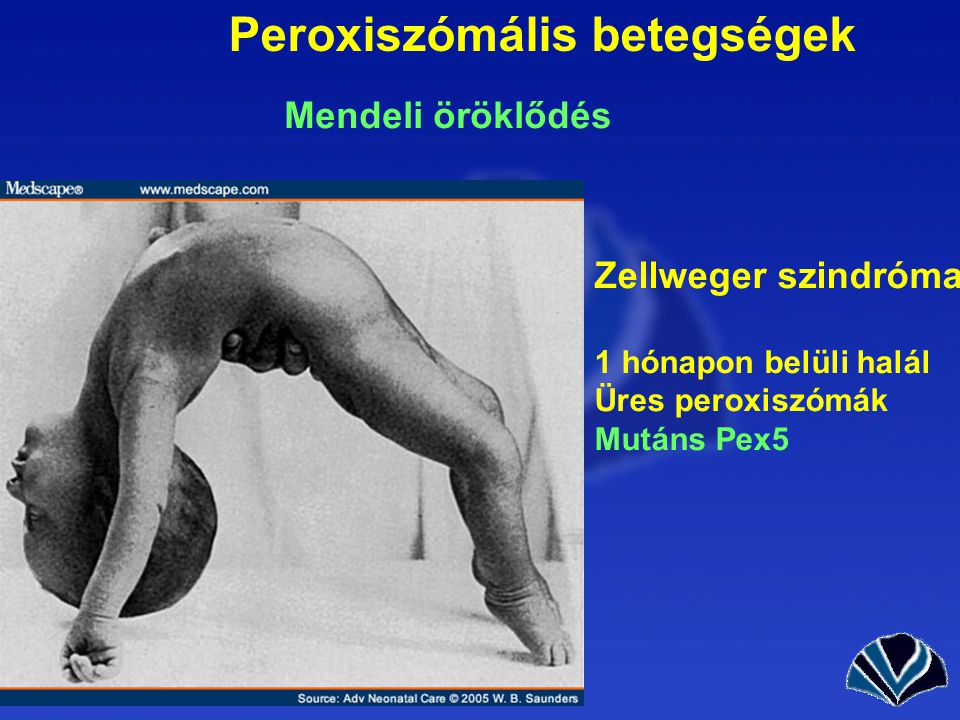 Peroxiszómális betegségek
