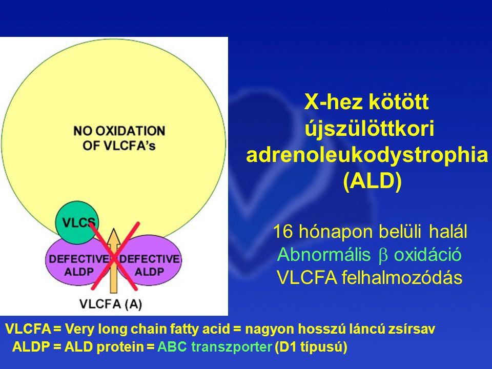 X-hez kötött újszülöttkori adrenoleukodystrophia (ALD)