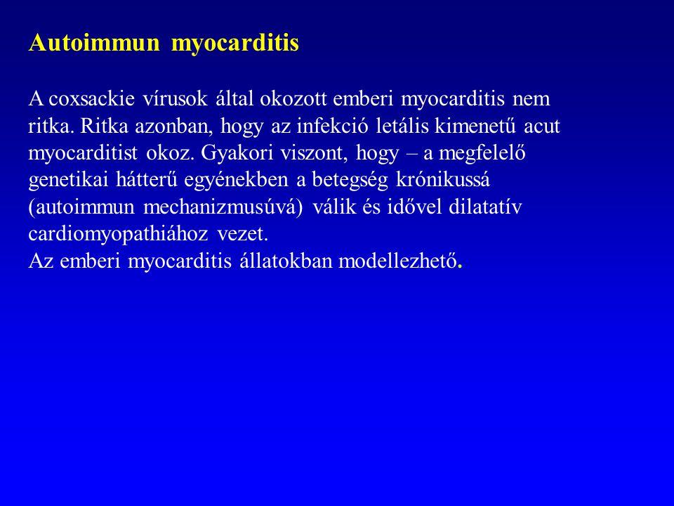Autoimmun myocarditis