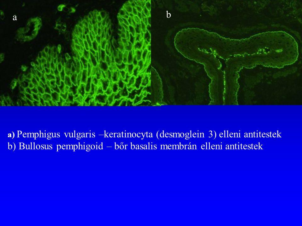b) Bullosus pemphigoid – bőr basalis membrán elleni antitestek