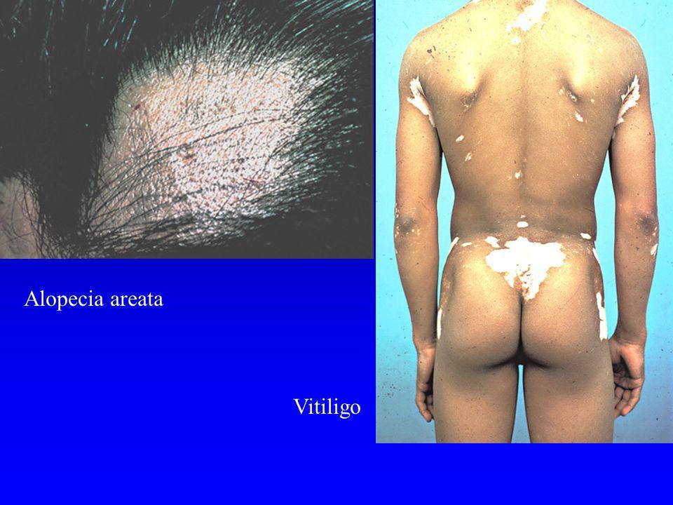 Alopecia areata Vitiligo