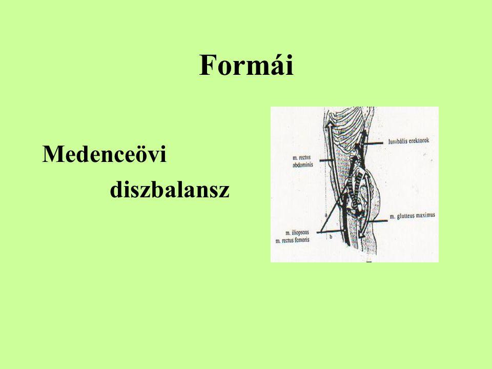 Formái Medenceövi diszbalansz