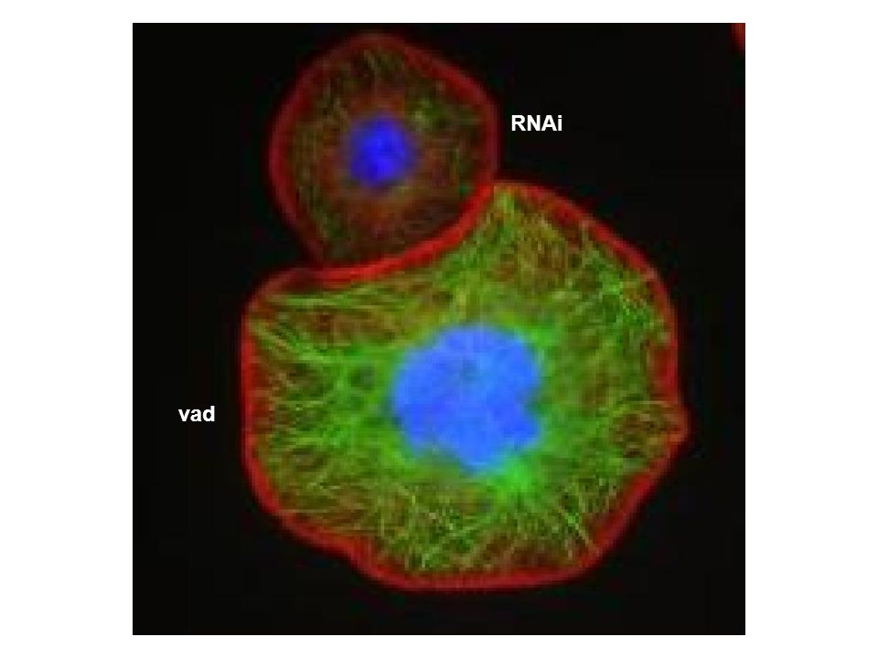 RNAi vad The cells were fixed and stained for tubulin, actin and DNA