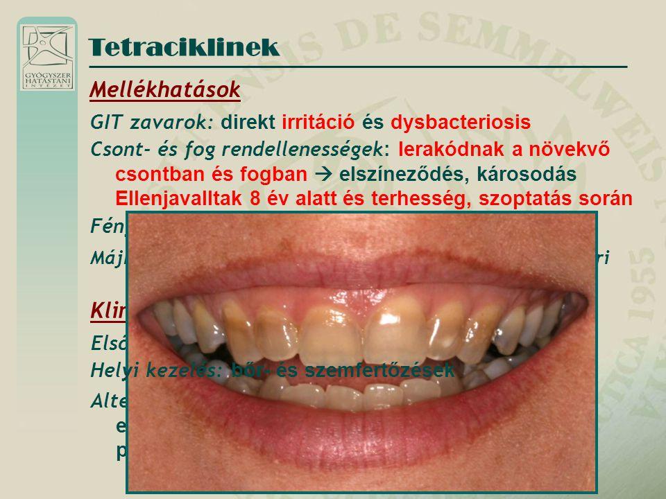 Tetraciklinek Mellékhatások Klinikai alkalmazás