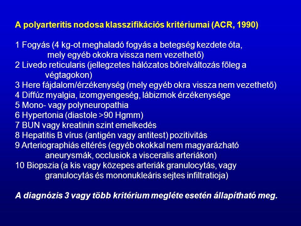 A polyarteritis nodosa klasszifikációs kritériumai (ACR, 1990)