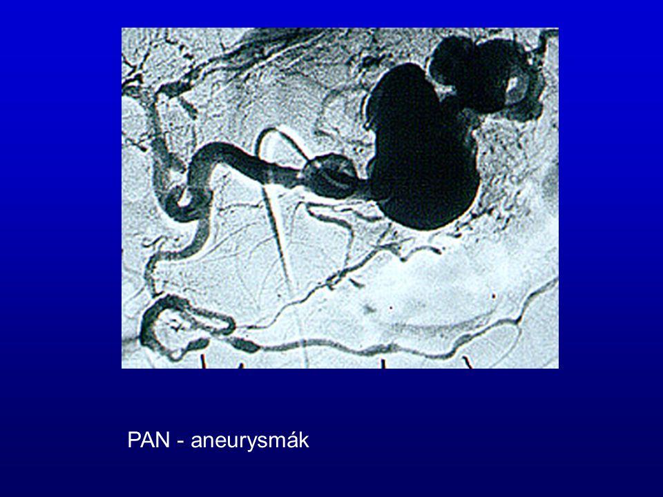 PAN - aneurysmák