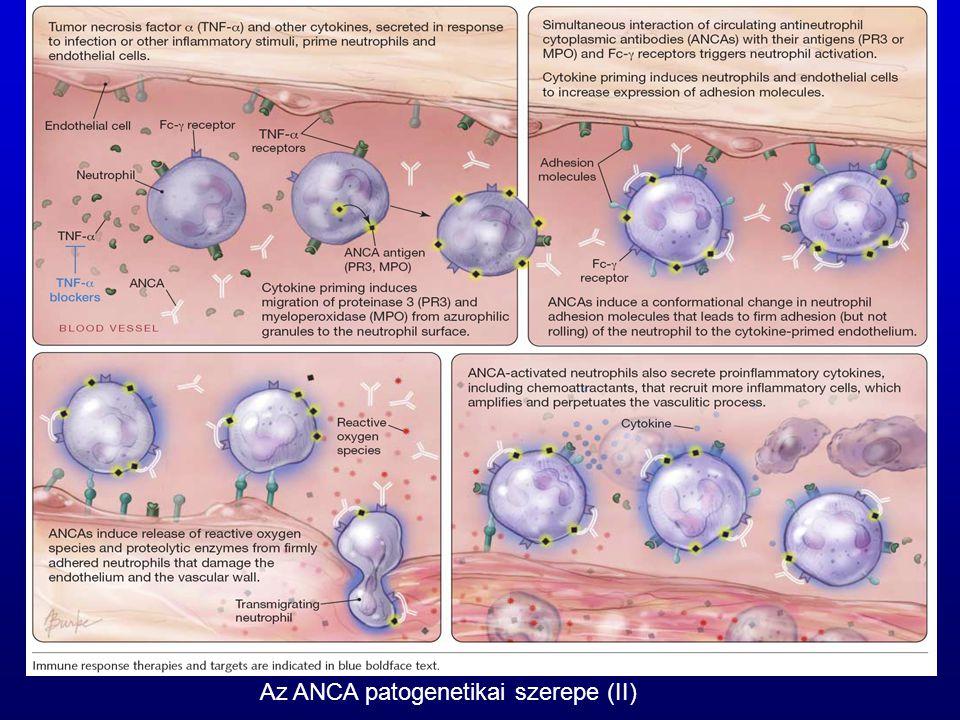 Az ANCA patogenetikai szerepe (II)