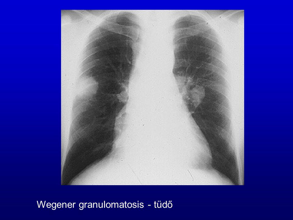 Wegener granulomatosis - tüdő