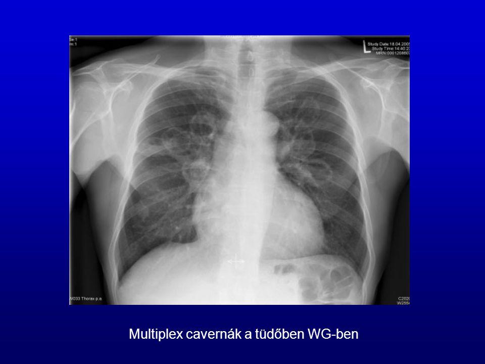 Multiplex cavernák a tüdőben WG-ben