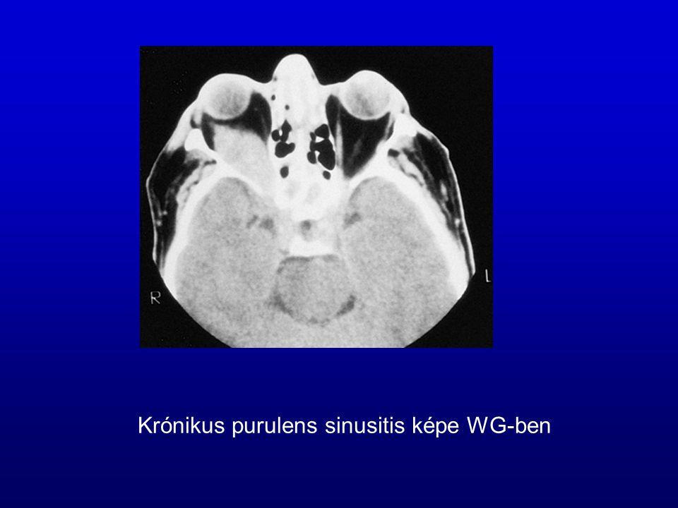 Krónikus purulens sinusitis képe WG-ben