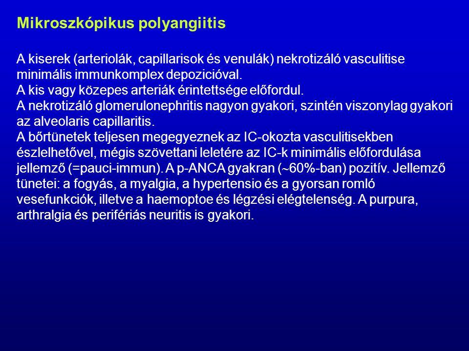 Mikroszkópikus polyangiitis