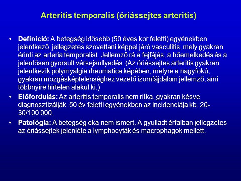 Arteritis temporalis (óriássejtes arteritis)