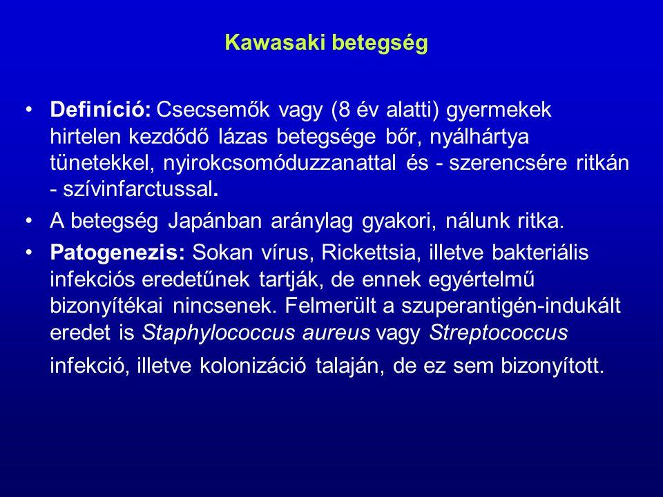 Kawasaki betegség