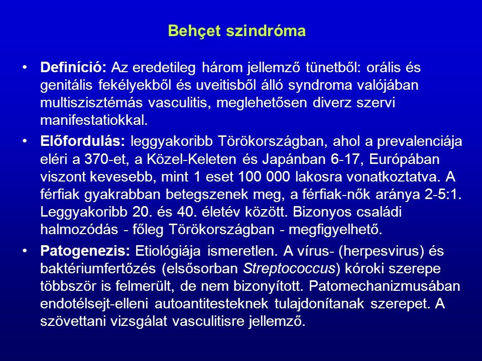 Behçet szindróma