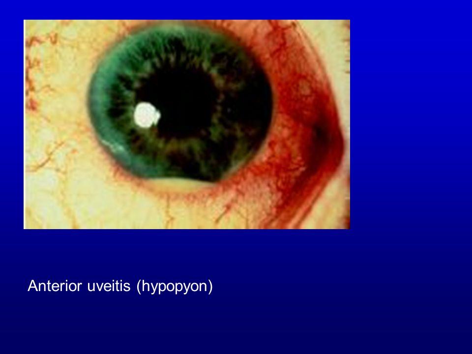 Anterior uveitis (hypopyon)