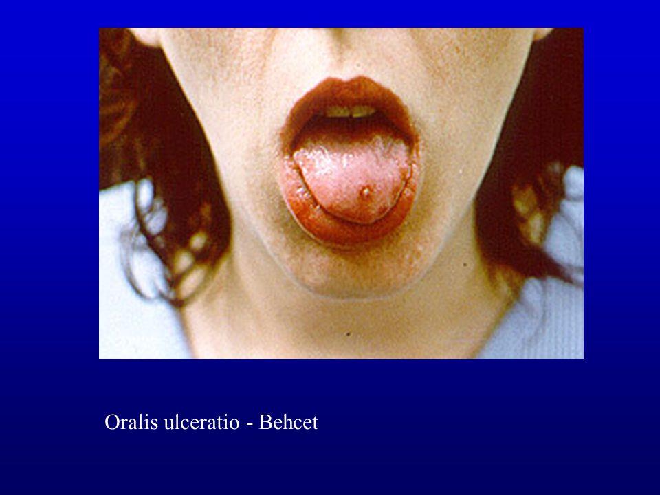 Oralis ulceratio - Behcet