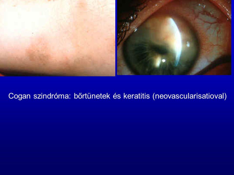 Cogan szindróma: bőrtünetek és keratitis (neovascularisatioval)