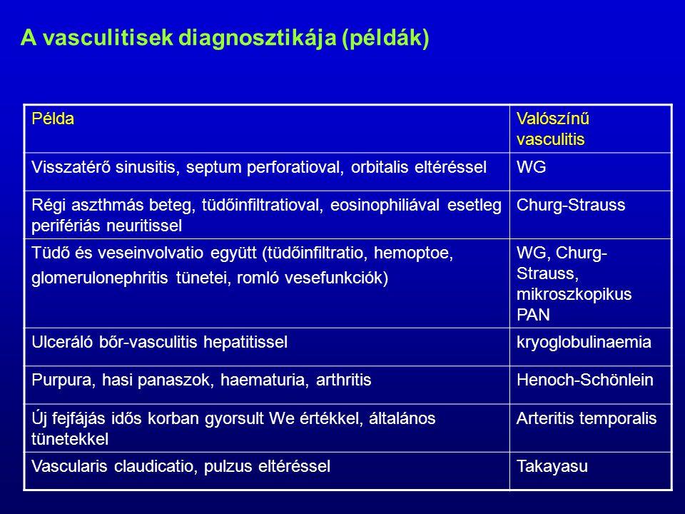 A vasculitisek diagnosztikája (példák)
