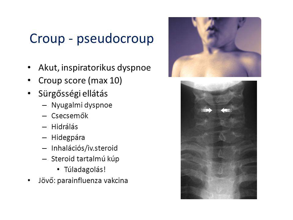 Croup - pseudocroup Akut, inspiratorikus dyspnoe Croup score (max 10)