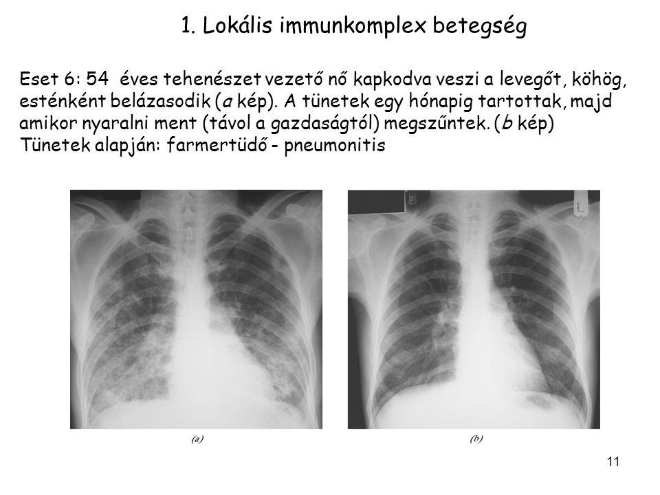 1. Lokális immunkomplex betegség