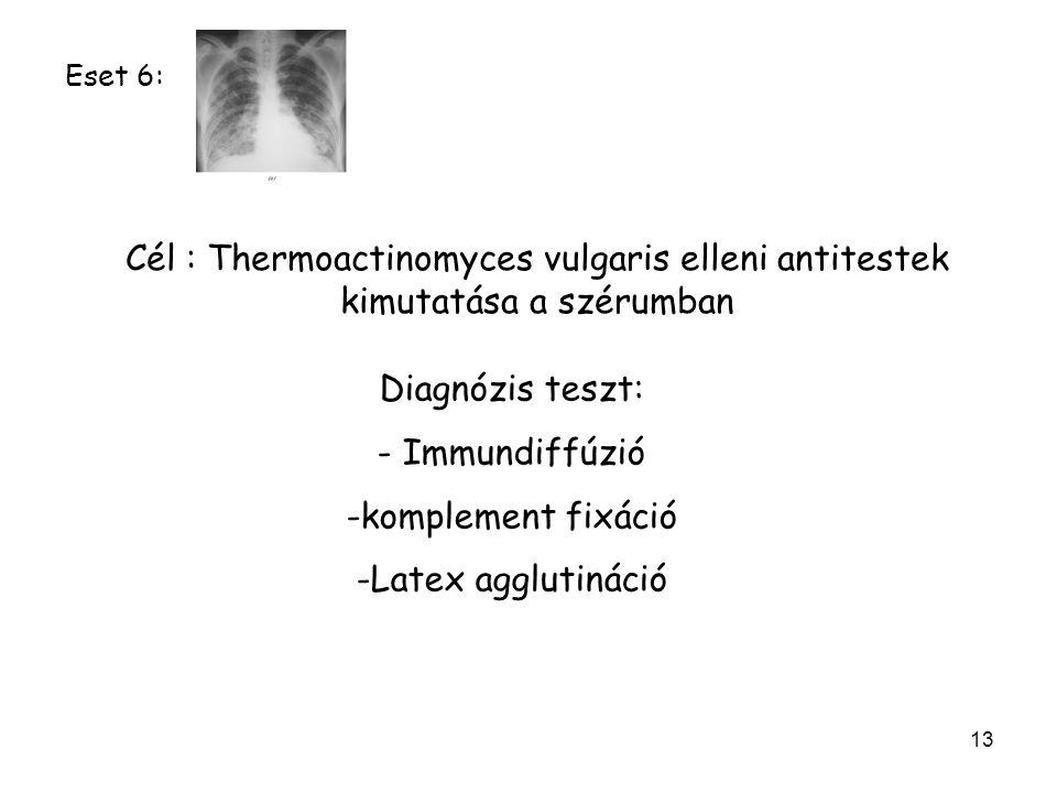 Eset 6: Cél : Thermoactinomyces vulgaris elleni antitestek kimutatása a szérumban. Diagnózis teszt: