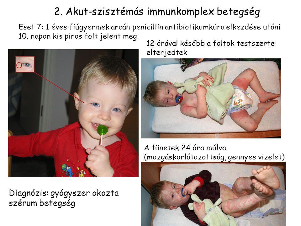 2. Akut-szisztémás immunkomplex betegség