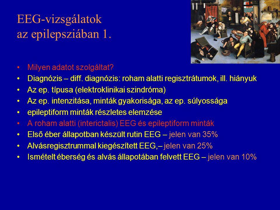 EEG-vizsgálatok az epilepsziában 1.