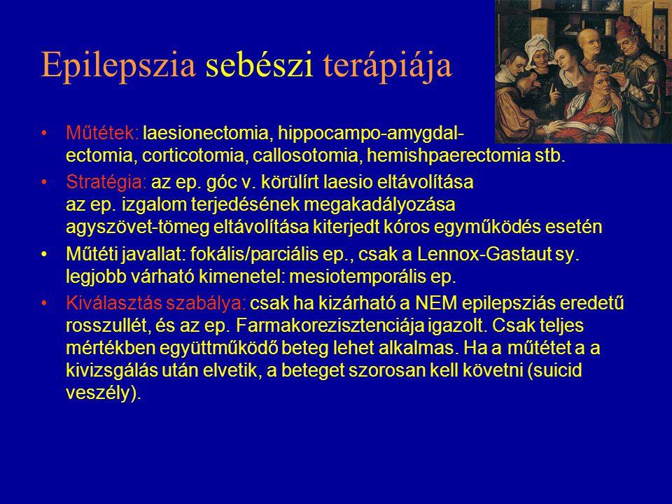 Epilepszia sebészi terápiája