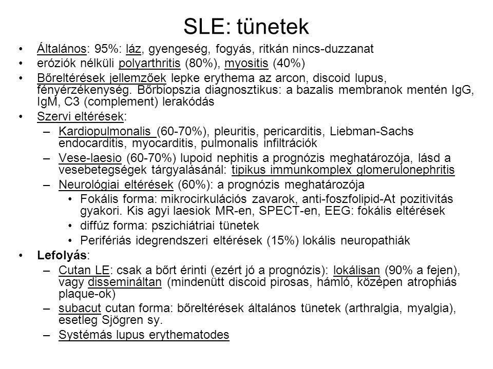 SLE: tünetek Általános: 95%: láz, gyengeség, fogyás, ritkán nincs-duzzanat. eróziók nélküli polyarthritis (80%), myositis (40%)