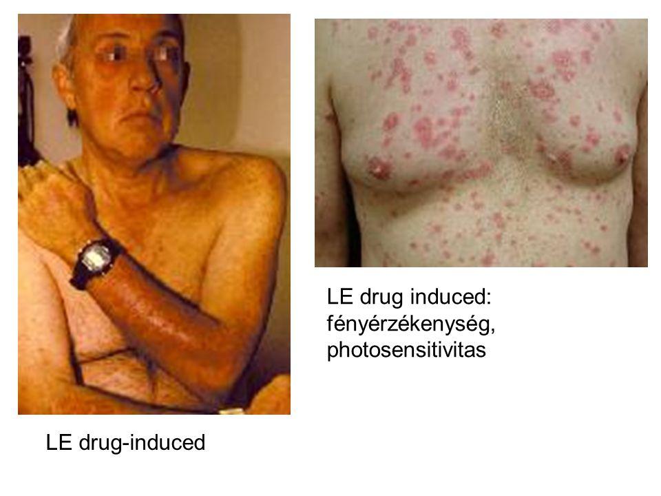 LE drug induced: fényérzékenység, photosensitivitas