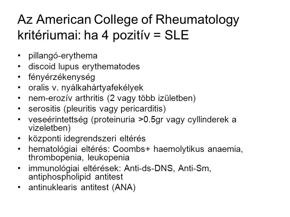 Az American College of Rheumatology kritériumai: ha 4 pozitív = SLE