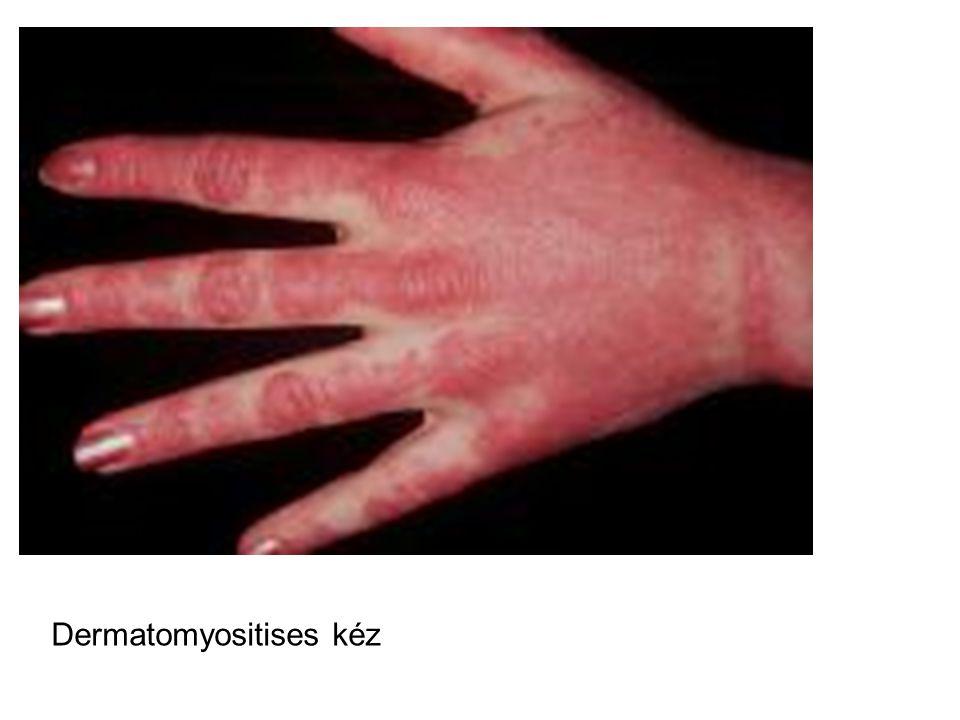 Dermatomyositises kéz