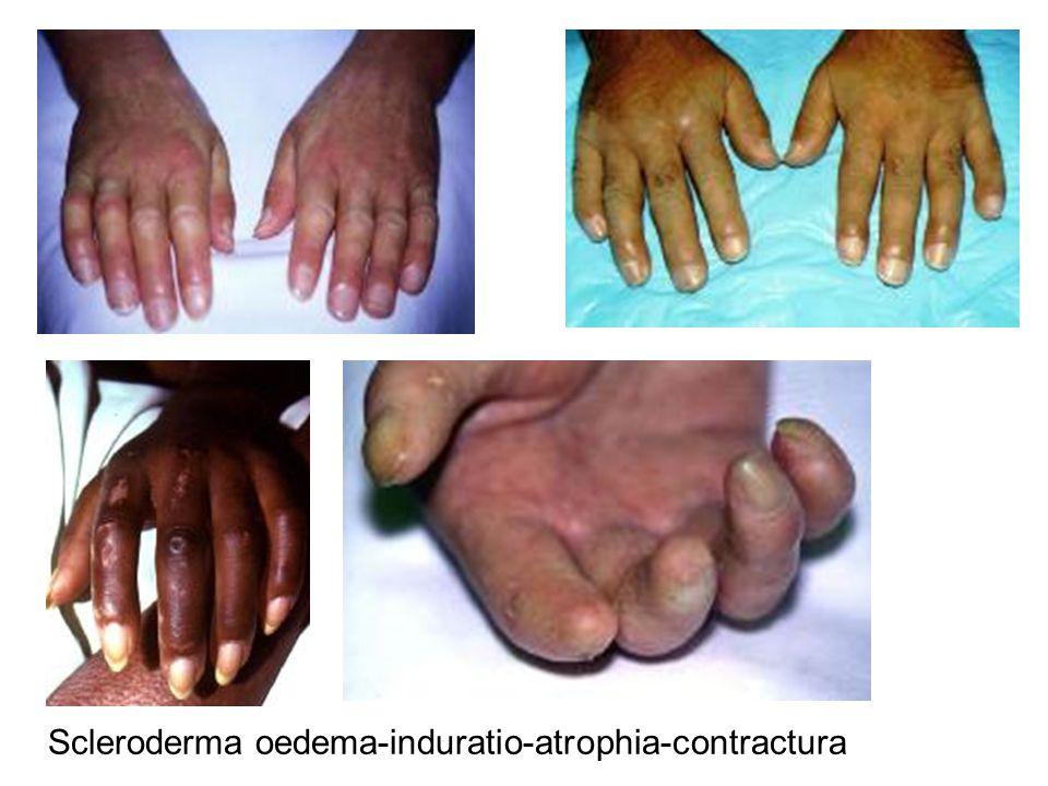 Scleroderma oedema-induratio-atrophia-contractura