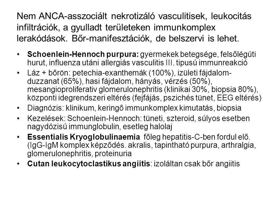 Nem ANCA-asszociált nekrotizáló vasculitisek, leukocitás infiltrációk, a gyulladt területeken immunkomplex lerakódások. Bőr-manifesztációk, de belszervi is lehet.