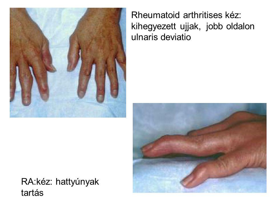 Rheumatoid arthritises kéz: kihegyezett ujjak, jobb oldalon ulnaris deviatio