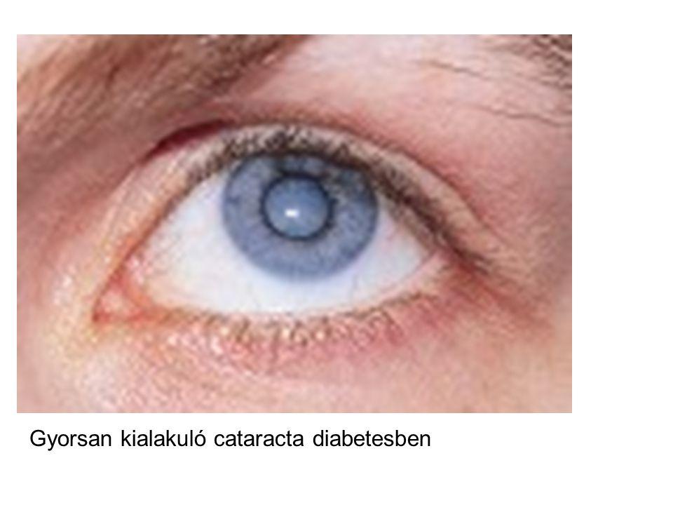 Gyorsan kialakuló cataracta diabetesben
