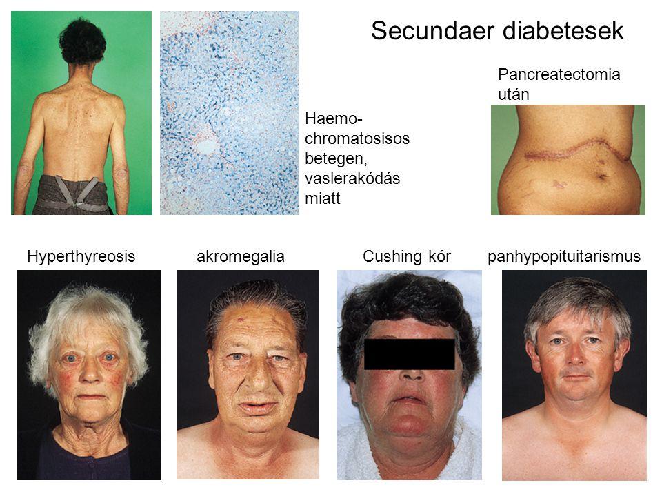 Secundaer diabetesek Pancreatectomia után