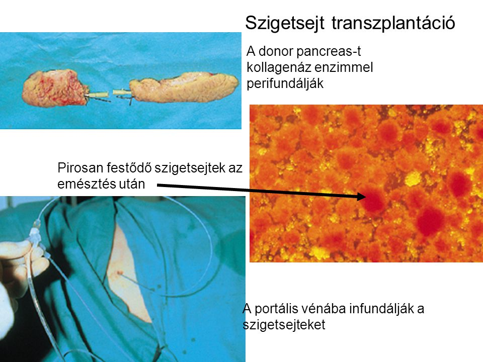 Szigetsejt transzplantáció
