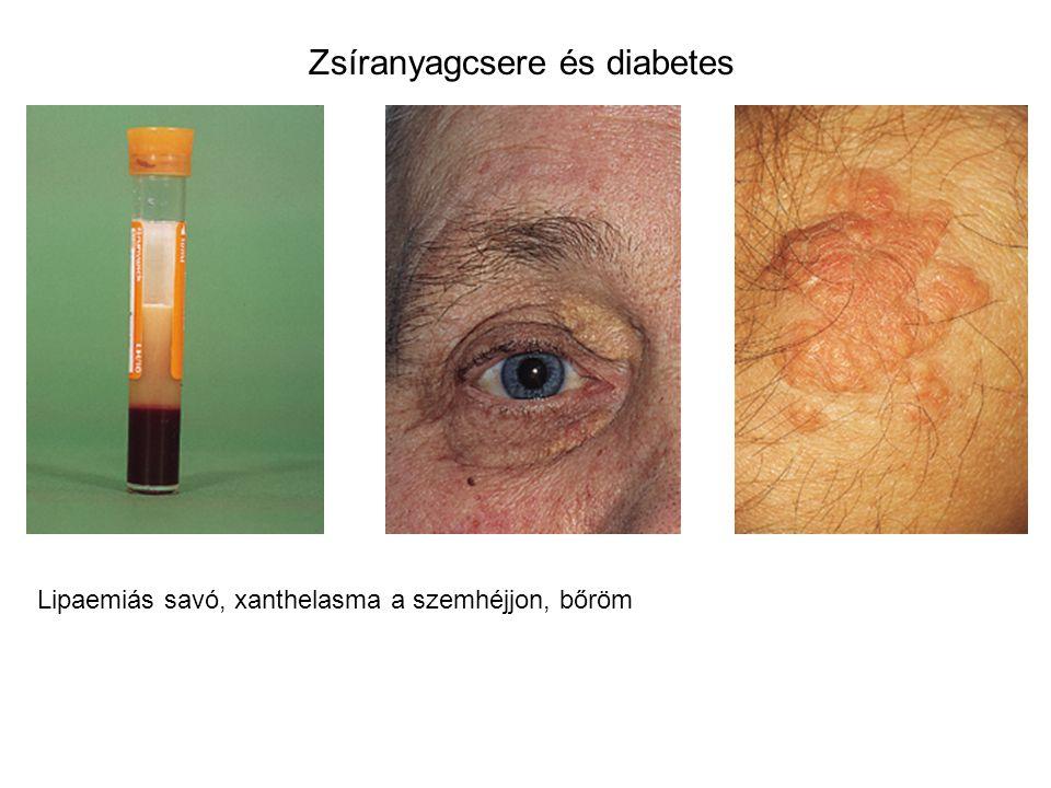 Zsíranyagcsere és diabetes