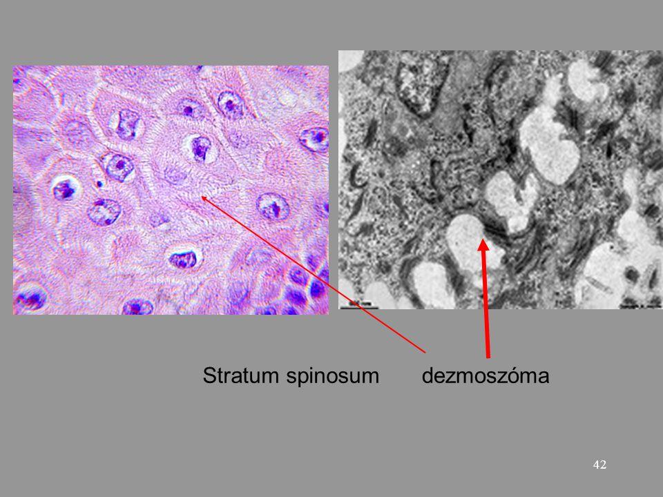 Stratum spinosum dezmoszóma