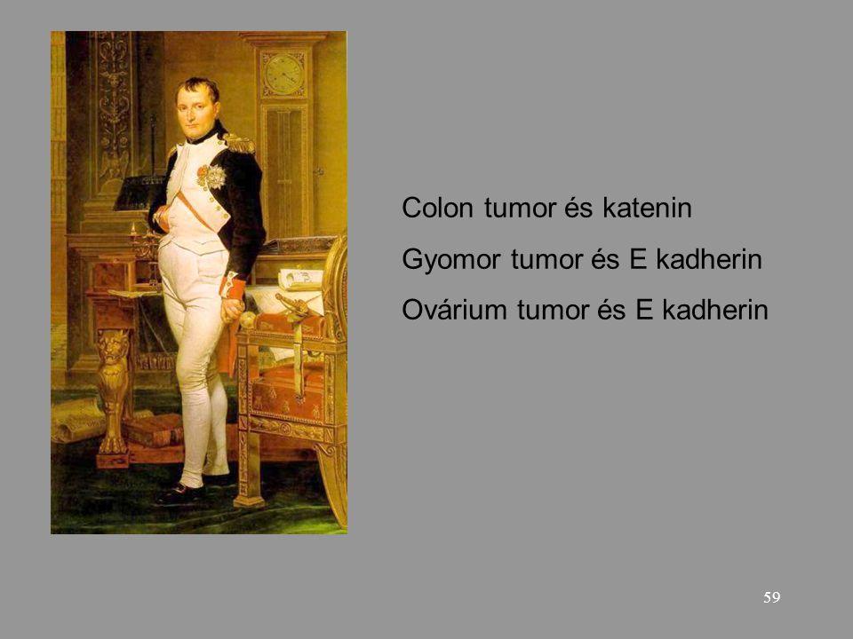 Colon tumor és katenin Gyomor tumor és E kadherin Ovárium tumor és E kadherin