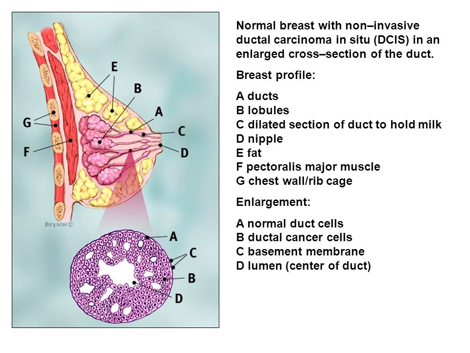 Normal breast with non–invasive ductal carcinoma in situ (DCIS) in an enlarged cross–section of the duct.