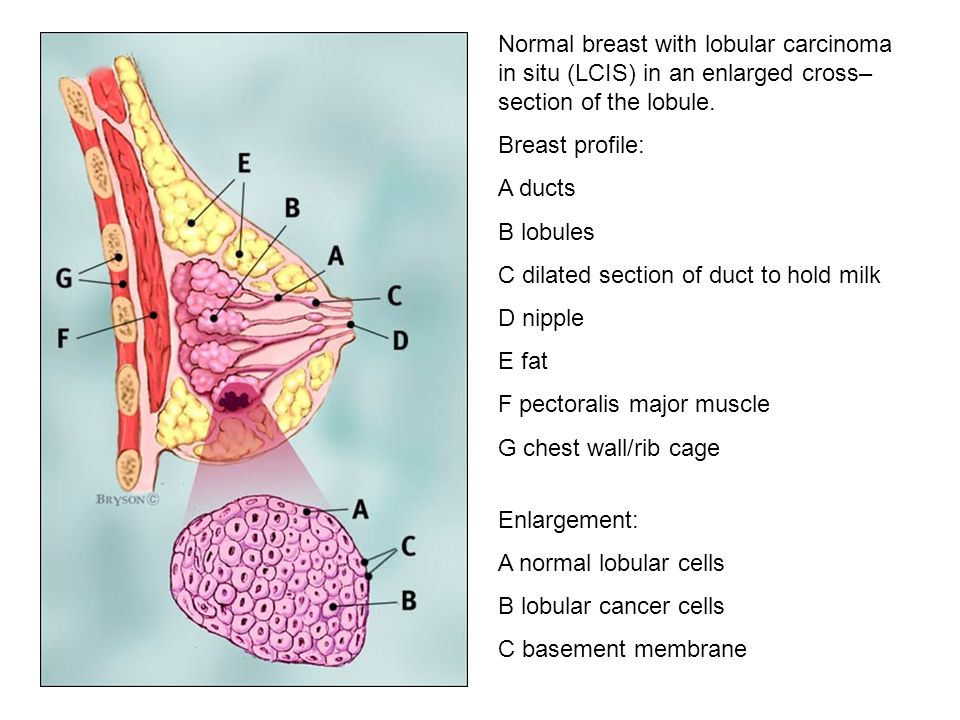 Normal breast with lobular carcinoma in situ (LCIS) in an enlarged cross–section of the lobule.