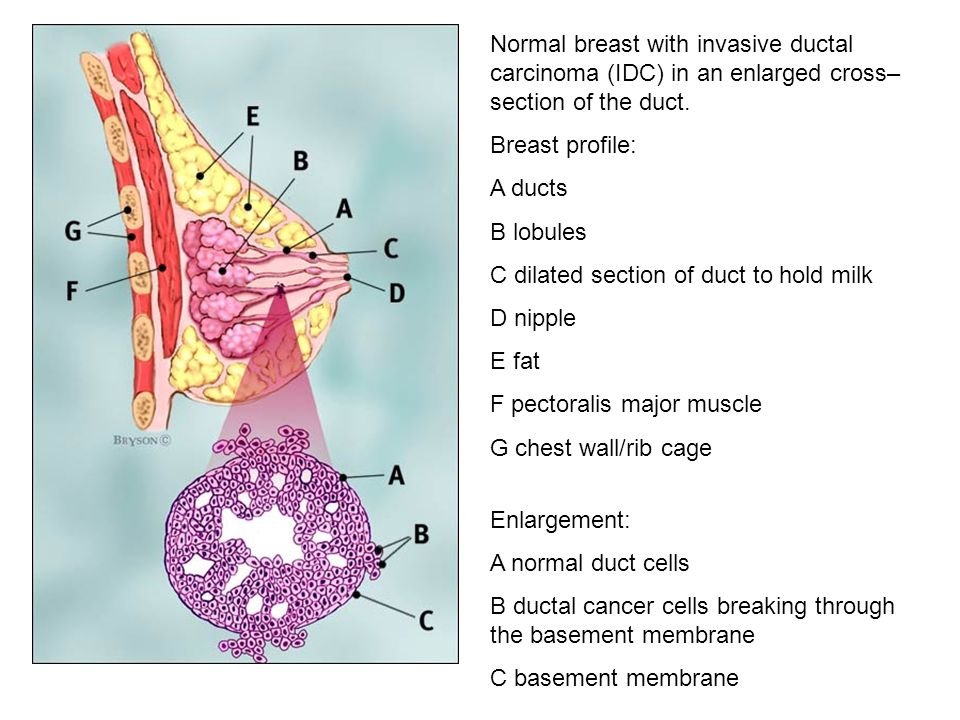 Normal breast with invasive ductal carcinoma (IDC) in an enlarged cross–section of the duct.