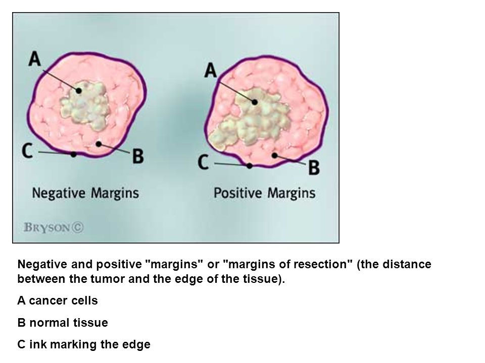 Negative and positive margins or margins of resection (the distance between the tumor and the edge of the tissue).